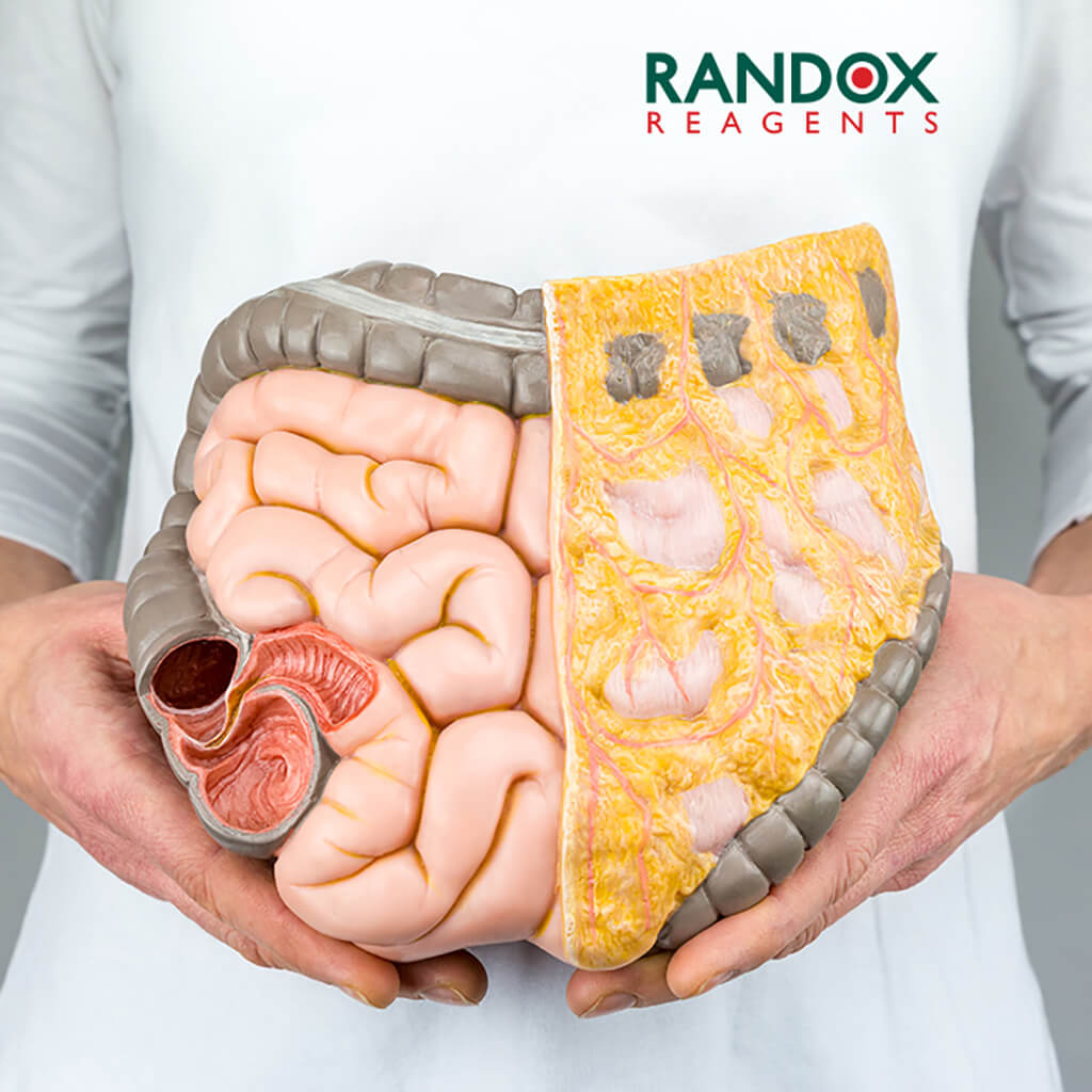What Is Visceral Fat Randox Laboratories