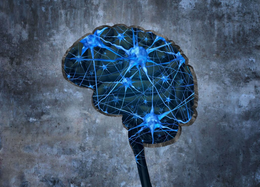 a history and the medical challenges of the alzheimers disease Diagnosis and treatment of alzheimer's disease: current challenges kelly bethune  history alzheimer's disease was  disease, each with its own challenges.